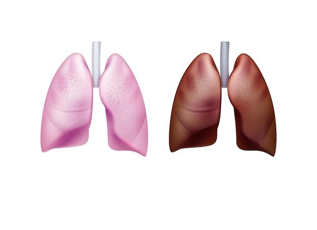 Realistische roze gezonde en bruine zieke longen met luchtpijp close-up vooraanzicht geïsoleerd op een witte achtergrond Premium Vector