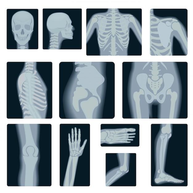 Realistische set röntgenfoto's Premium Vector