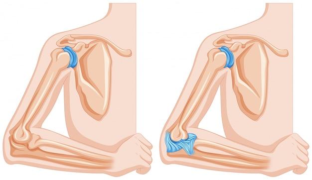 Röntgenfoto van het ellebooggewricht Gratis Vector