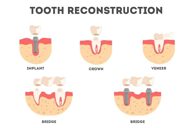 Set van verschillende soorten wederopbouw van menselijke tanden. tandverlies en herstel. idee van tandheelkundige gezondheid en medische behandeling. illustratie Premium Vector