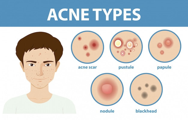 Soorten acne op de huid of puistjes Gratis Vector