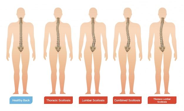 Spinale kromming scoliose medische infographic afbeeldingen instellen met silhouetten van menselijk lichaam met wervelkolom en tekst Gratis Vector