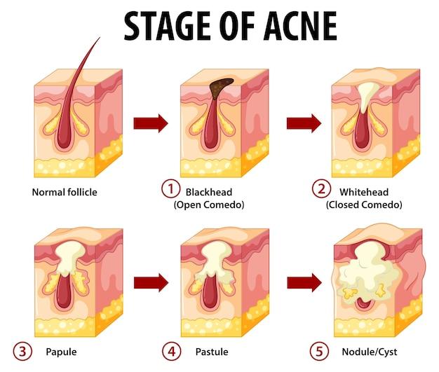 Stadia van de anatomie van huidacne Gratis Vector