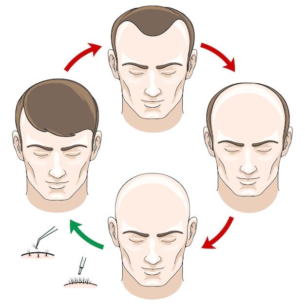 Stadia van haaruitval, haarbehandeling en haartransplantatie. haaruitval, kaal en zorg, gezondheid haor, menselijke haargroei, vector illustratie Gratis Vector