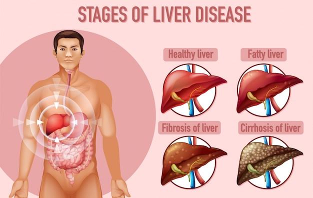 Stadia van leverziekte Gratis Vector