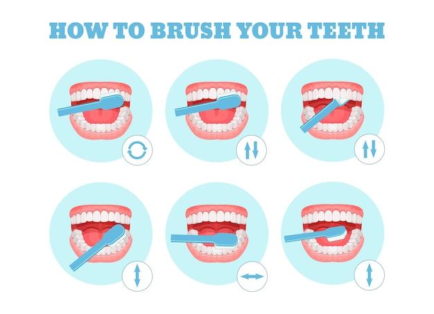 Stapsgewijs schema, instructies voor het correct poetsen van uw tanden. Premium Vector