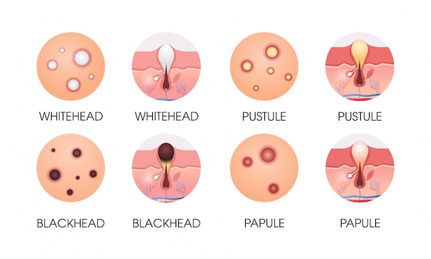 Stel verschillende gezichtshuid puistjes acne soorten porie comedonen cosmetologie huidverzorging problemen concept plat horizontaal Premium Vector