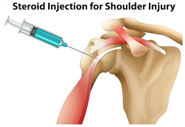Steroïde injectie voor schouderblessure Gratis Vector