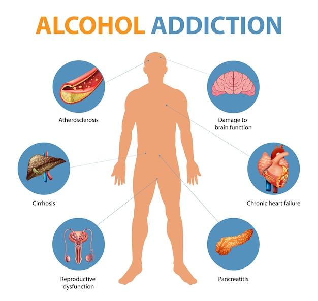Symptomen van alcoholverslaving infographic Gratis Vector