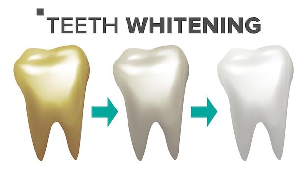 Tanden bleken illustratie Premium Vector