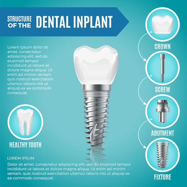 Tanden maquette. structurele elementen van tandheelkundig implantaat. infographic voor medicijnen Premium Vector