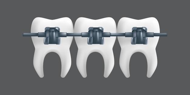Tanden met metalen beugels. orthodontische behandeling concept. realistische afbeelding van een tandheelkundig keramisch model geïsoleerd op een grijze achtergrond Premium Vector