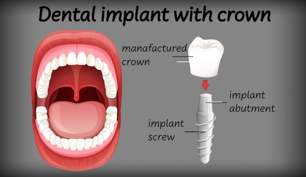 Tandheelkundig implantaat met kroon Gratis Vector