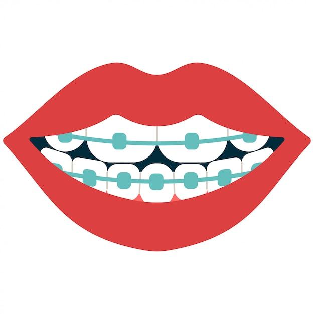 Tandheelkundige beugels cartoon geïsoleerd op wit Premium Vector