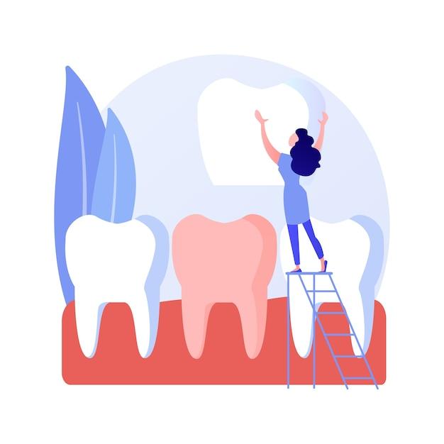 Tandheelkundige fineer abstract begrip vectorillustratie. fineerplaatsing, tandheelkundige schoonheidsoplossing, esthetiek van de tanden, cosmetische tandheelkunde, orthodontische kliniek, abstracte metafoor van de glimlach van beroemdheden. Gratis Vector