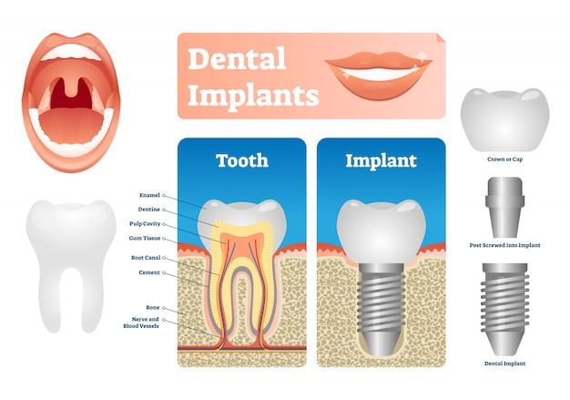 Tandheelkundige implantaten illustratie. gelabeld medisch schema met tandkap. Premium Vector