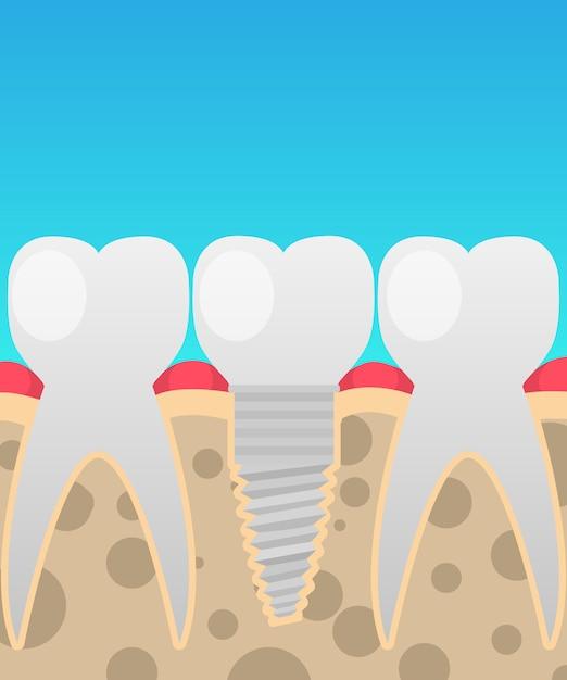 Tandheelkundige implantaten, tandvervanging Premium Vector