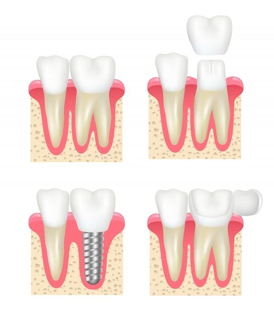 Tandheelkundige kroon. tand fineer implantaten gezonde holte stomatologie tandarts collectie Premium Vector