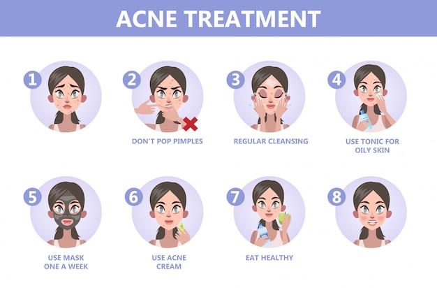 Tips voor acnebehandeling. hoe een duidelijke gezichtsinstructie te krijgen. probleem met gezicht. gezondheidszorg en schoonheid. mee-eters en puistjes. illustratie Premium Vector