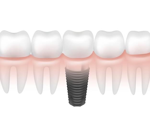 Vector metalen tandheelkundig implantaat tussen andere tanden in tandvlees zijaanzicht geïsoleerd op een witte achtergrond Gratis Vector