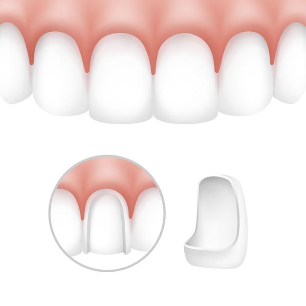 Vector tandheelkundige fineren op menselijke tanden geïsoleerd op een witte achtergrond Gratis Vector