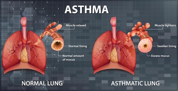 Vergelijking van gezonde long en astmatische long Gratis Vector