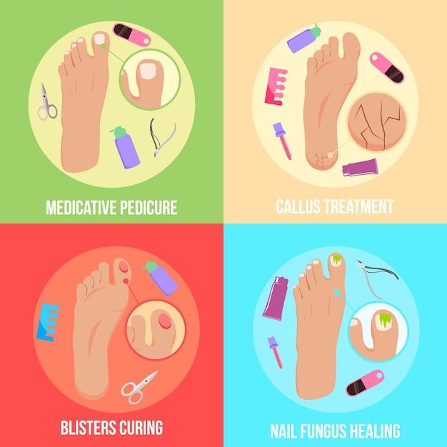 Voetproblemen platte concept medicinale pedicure behandeling van blaren nagel schimmel genezing geïsoleerd Gratis Vector