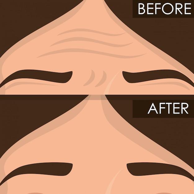 Vrouw voor en na de huidbehandeling Gratis Vector