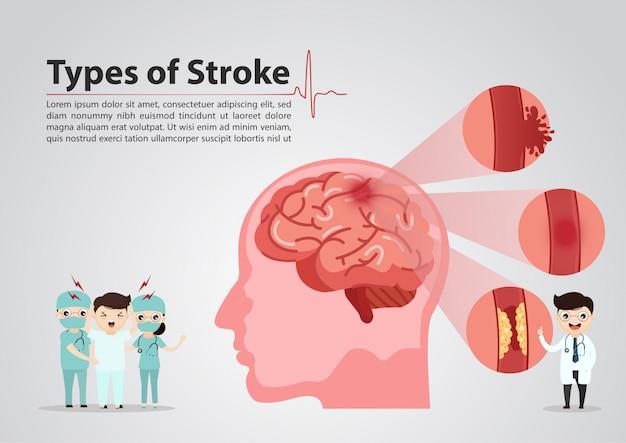 Wetenschappelijke medisch van menselijke hersenslagillustratie Premium Vector