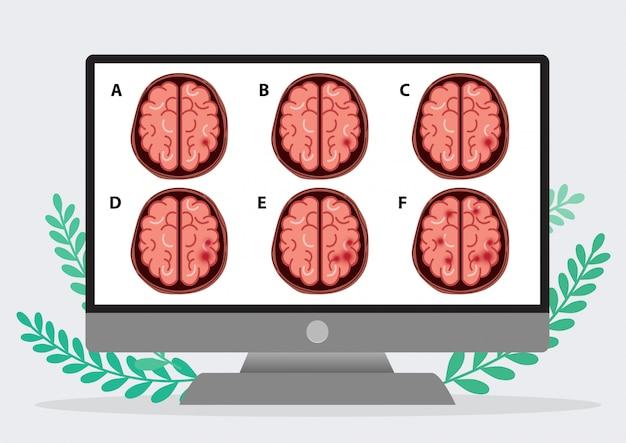 Wetenschappelijke medische illustratie van menselijke hersenslag Premium Vector