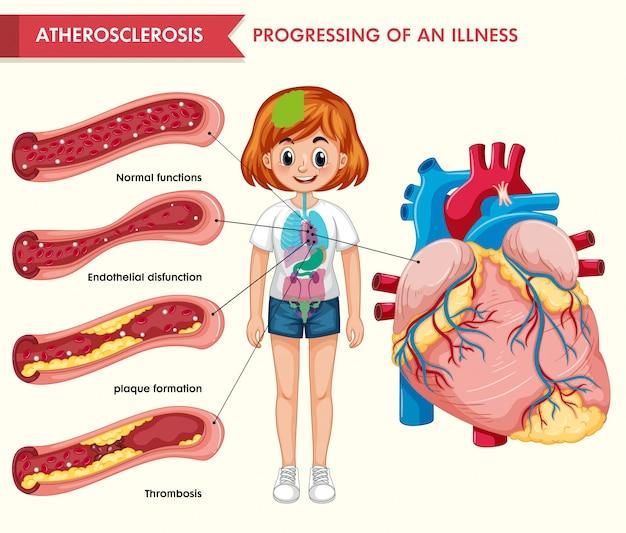 Wetenschappelijke medische infographic van atherosclerose Gratis Vector