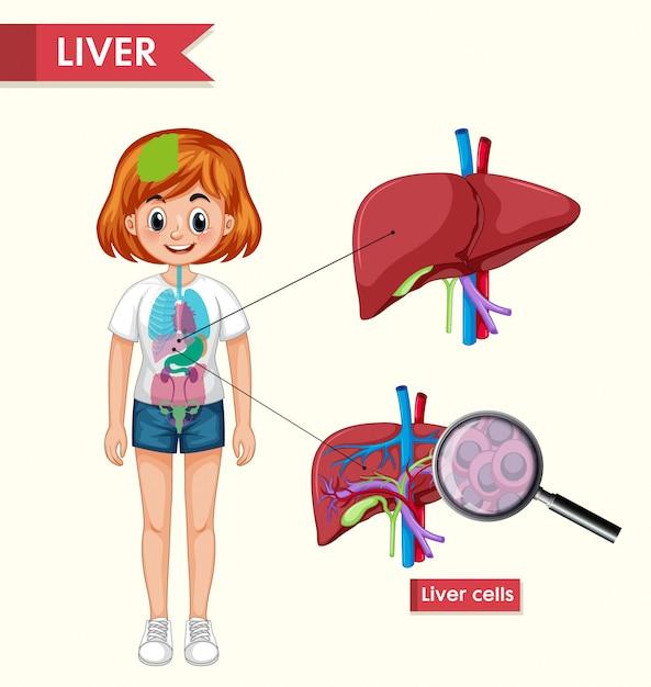 Wetenschappelijke medische infographic van nierziekte Gratis Vector