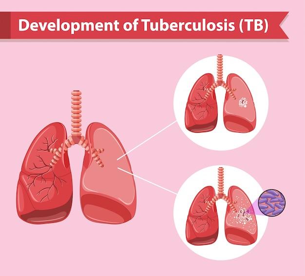 Wetenschappelijke medische infographic van tuberculose Gratis Vector
