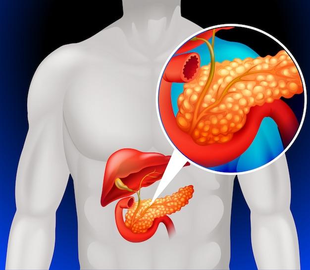 Zoom uit menselijke pancreas Gratis Vector